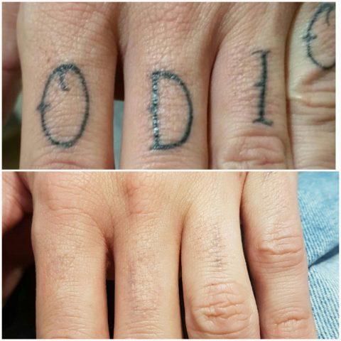 Precios Eliminacion De Tatuajes Archivos Láser Tatuajes Valencia
