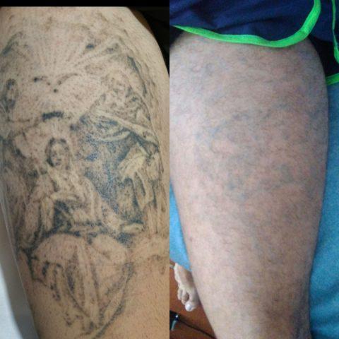 Eliminacion De Tatuajes Hasta 55cm Láser Tatuajes Valencia
