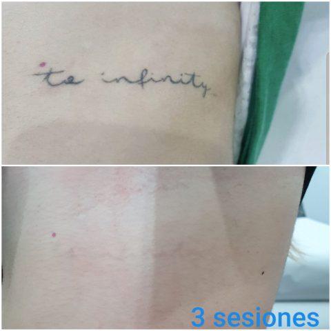 Eliminacion tatuajes letras
