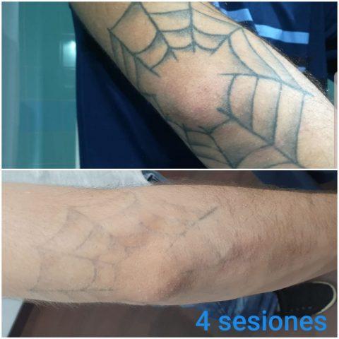 sesiones finales eliminacion tatuajes codos