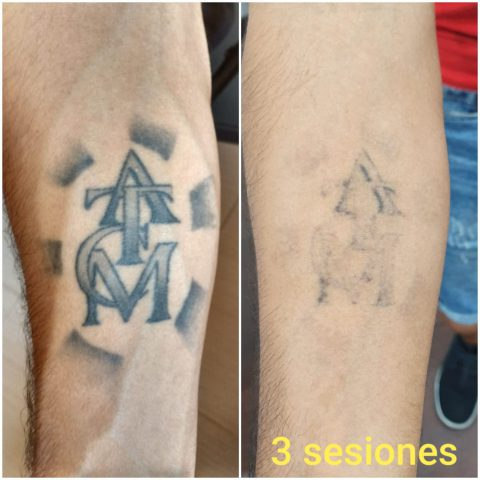 Eliminacion tatuajes dibujos muñeca