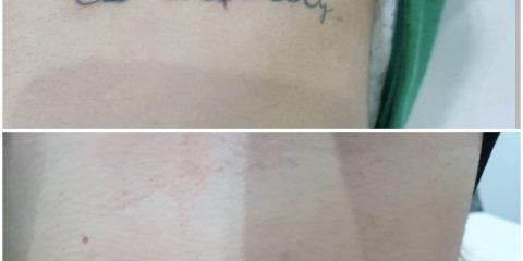 quitar tatuajes antes y despues