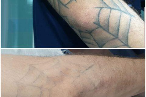 4 sesion eliminacion de tatuaje