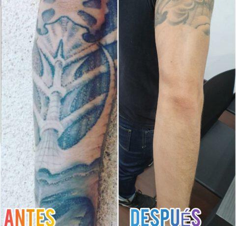 la zona más molesta para eliminarse un tatuaje